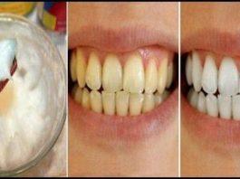 3 минуты процесса, может обеспечить ослепительные белые зубы естественным способом!