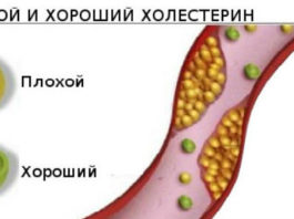 Миф о холестерине — крупнейший обман ХХ века