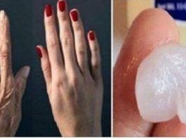 Руки этой 46-летней женщины выглядели на 70, но когда друг показал ей этот секретный рецепт, она просто не узнала свои руки!