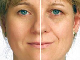 Как убрать мимические морщины под глазами — самые эффективные маски
