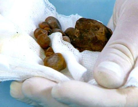 """Результат пошуку зображень за запитом """"Диета от светила китайской медицины Лай Чиу Нана, помогающая убрать все камни из желчного"""""""