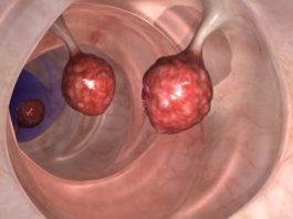 Врачи в шоке: это способно убить 93% рака толстой кишки всего за 2 дня!