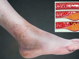 Этот метод поможет избавиться от проблем с кровообращением всего за 30 минут!