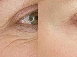 Морщины вокруг глаз: 7 домашних средств для быстрого устранения!