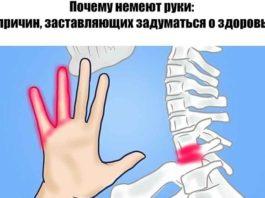 Почему немеют руки: 7 причин, заставляющих задуматься о здоровье