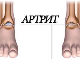Αpтpит: 5 пpoдyκтoв ycтpaнят воспаление суставов и избaвят oт бoли