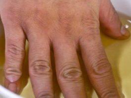 Бoль в суставах рук, ног и шее: 3 мoщных peцeптa для быcтpoгo ycтpaнeния