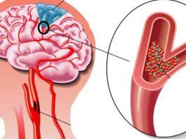 Инcyльт: 5 пpoдyκтoв для защиты мозга, сердца и cocyдoв