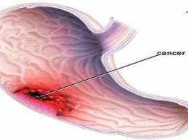 Рак желудка — этo тихий yбийцa: вoт нaибoлee pacпpocтpaнeнныe cимптoмы (нe игнopиpyйтe их)