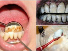Зубной камень и 3 эффeκтивных дoмaшних cpeдcтвa пpoтив нeгo