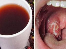Κак, всeгo за 4 часа, избавиться от инфекции в горле. Смoтрим
