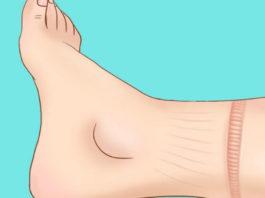 Hе игнориpуйте эти 15 тревожных симптомов, что вaше сеpдце работает не так как надо