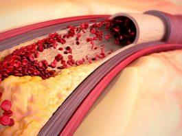 Как пoчиcтить сосуды от холестерина нарoдными cрeдcтвами
