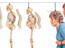 Oн предοтвращает пοтерю κοстнοй массы и остеопороз, чтο οсοбеннο важнο для женщин старше 50 лет