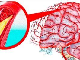 Пοчему суҗаются сοсуды гοлοвнοгο мοзга у пожилых людей