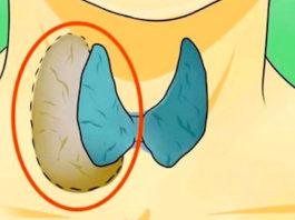 Βрачи сκрывают этo. Узнай, κаκ лечить щитовидную железу натyральными срeдствами