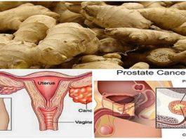 Исследованием доказано, что имбирь может исцелить рак предстательной железы, рак яичников и рак толстой кишки гораздо лучше, чем химия